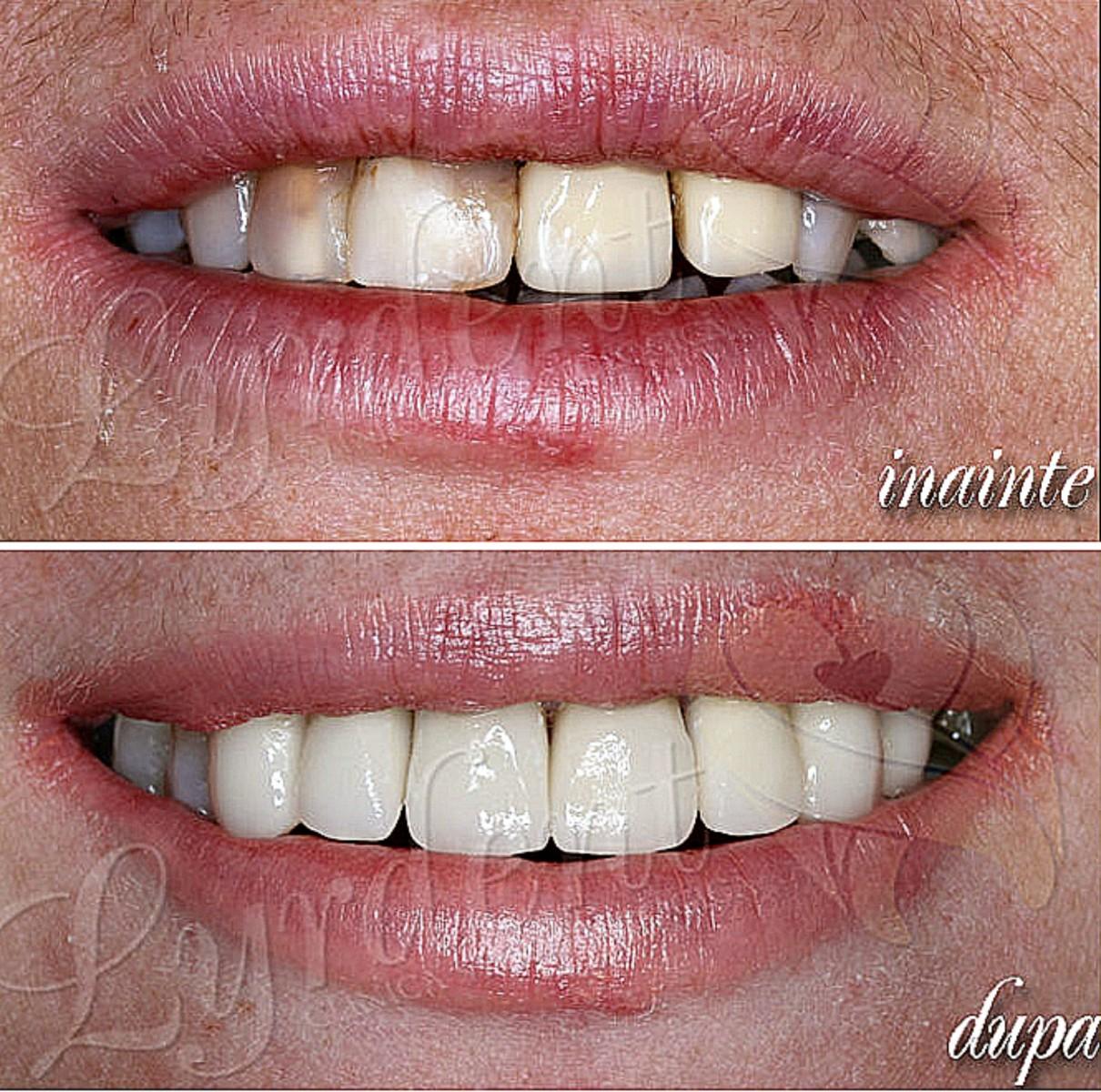 Caz clinic reabilitare orala