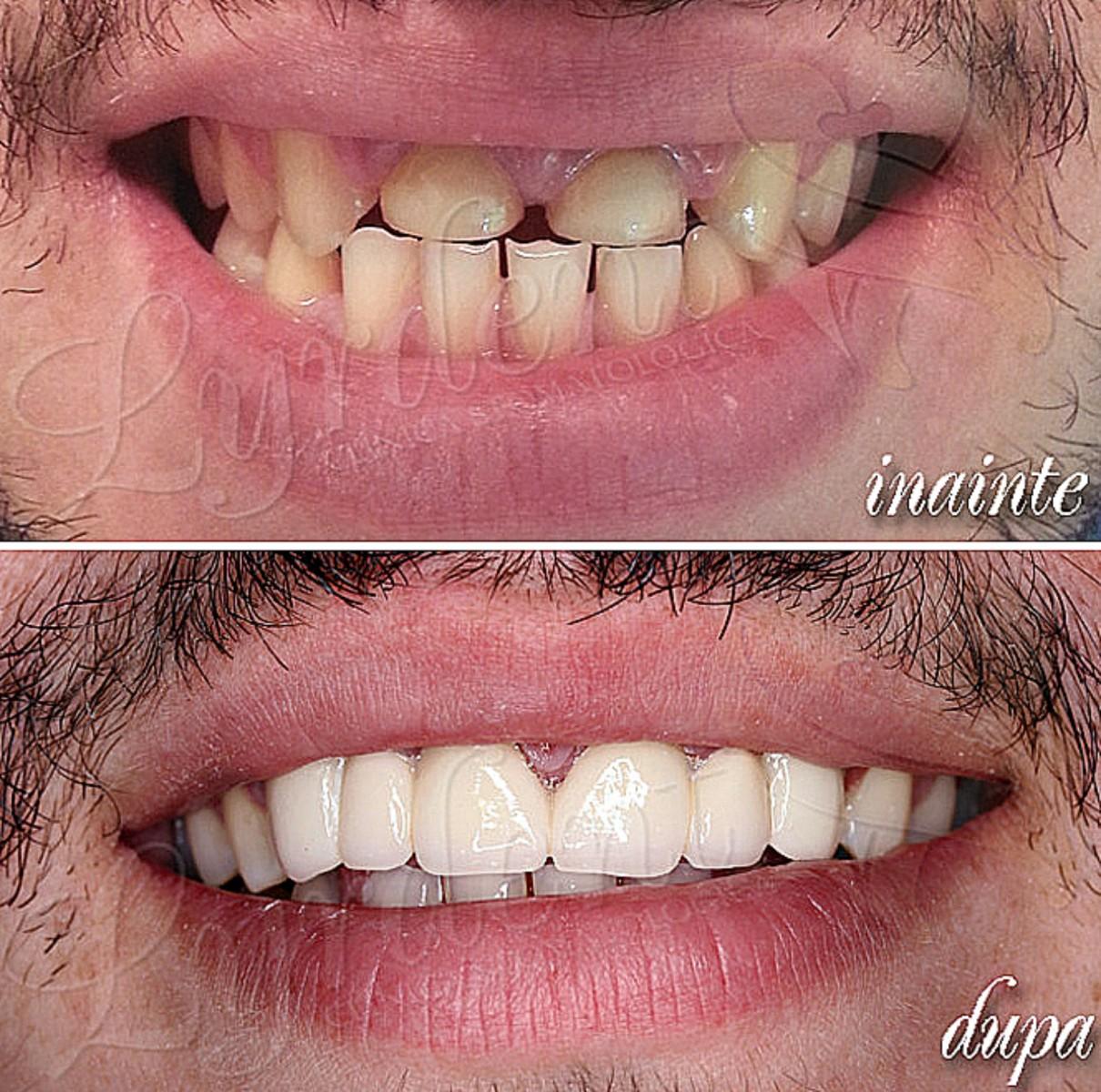 Bogdan- reabilitare orala totala