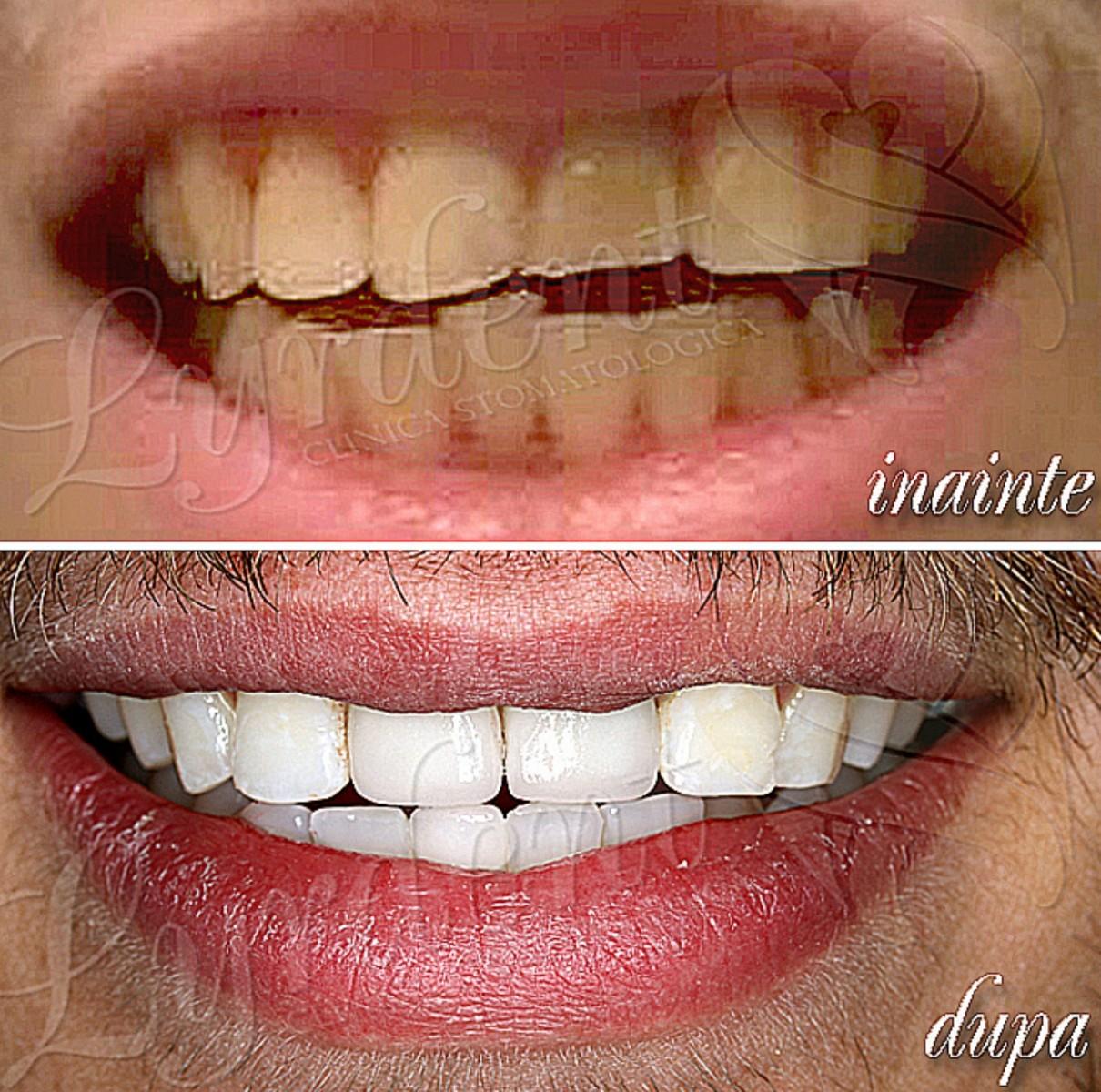 Reabilitare orala Dorin