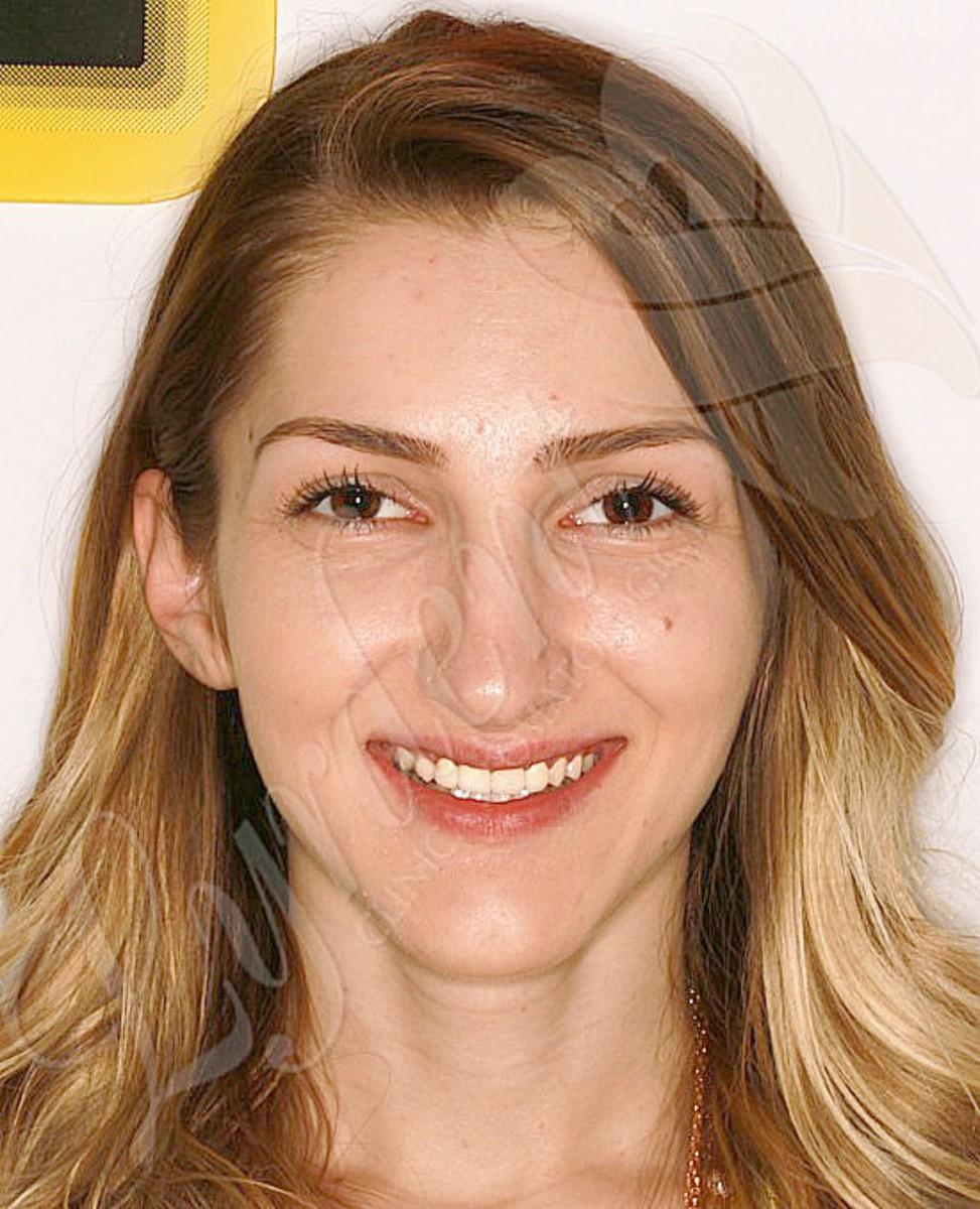 Caz clinic Lyrdent- Reabilitare orală totală Cristina