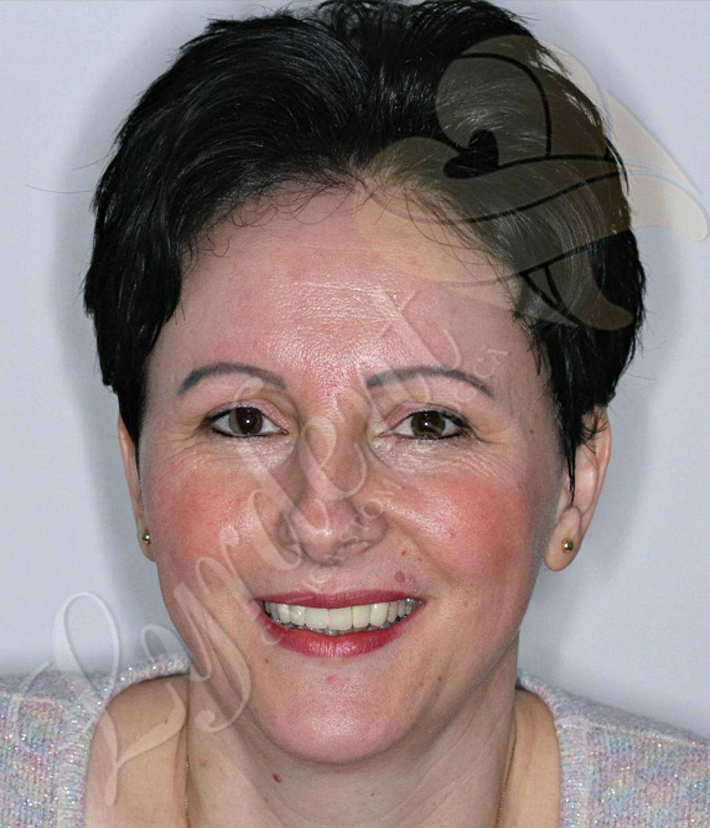 Caz clinic Lyrdent - Reabilitare orală