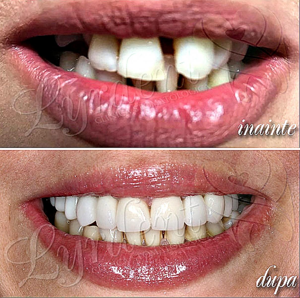 Caz clinic Lyrdent- Reabilitare orală totală Rossana