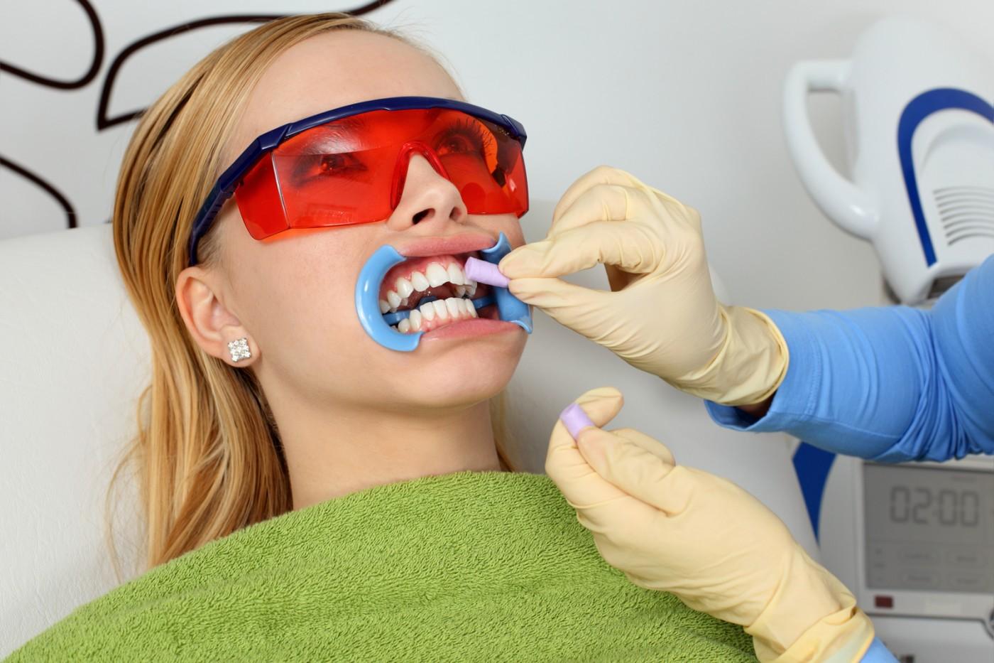 Albire dentară Lyrdent