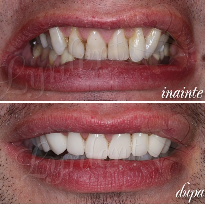 Reabilitare orală Caz clinic  Lyrdent București