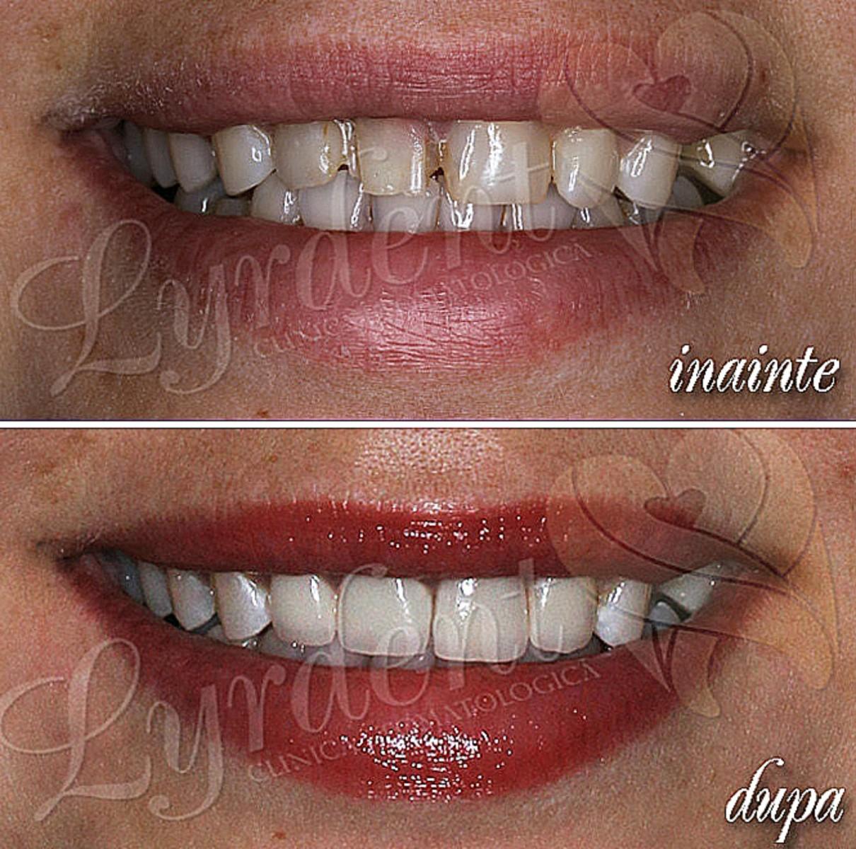 Reabilitare orala frontala Lyrdent