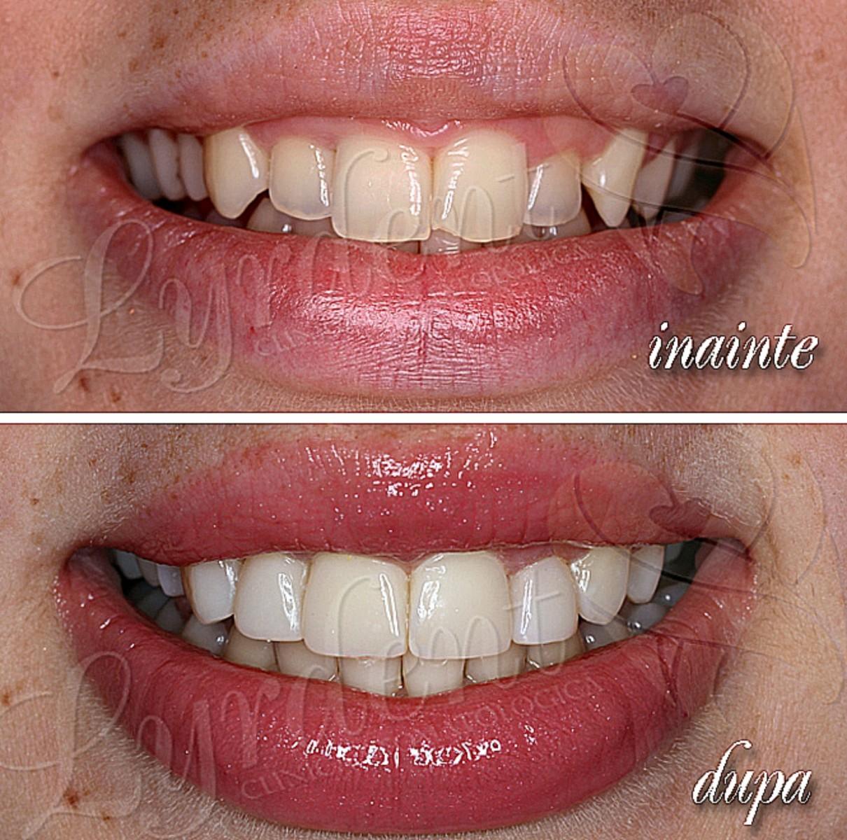 Fatete dentare din compozit Lyrdent Bucuresti - caz clinic Corina