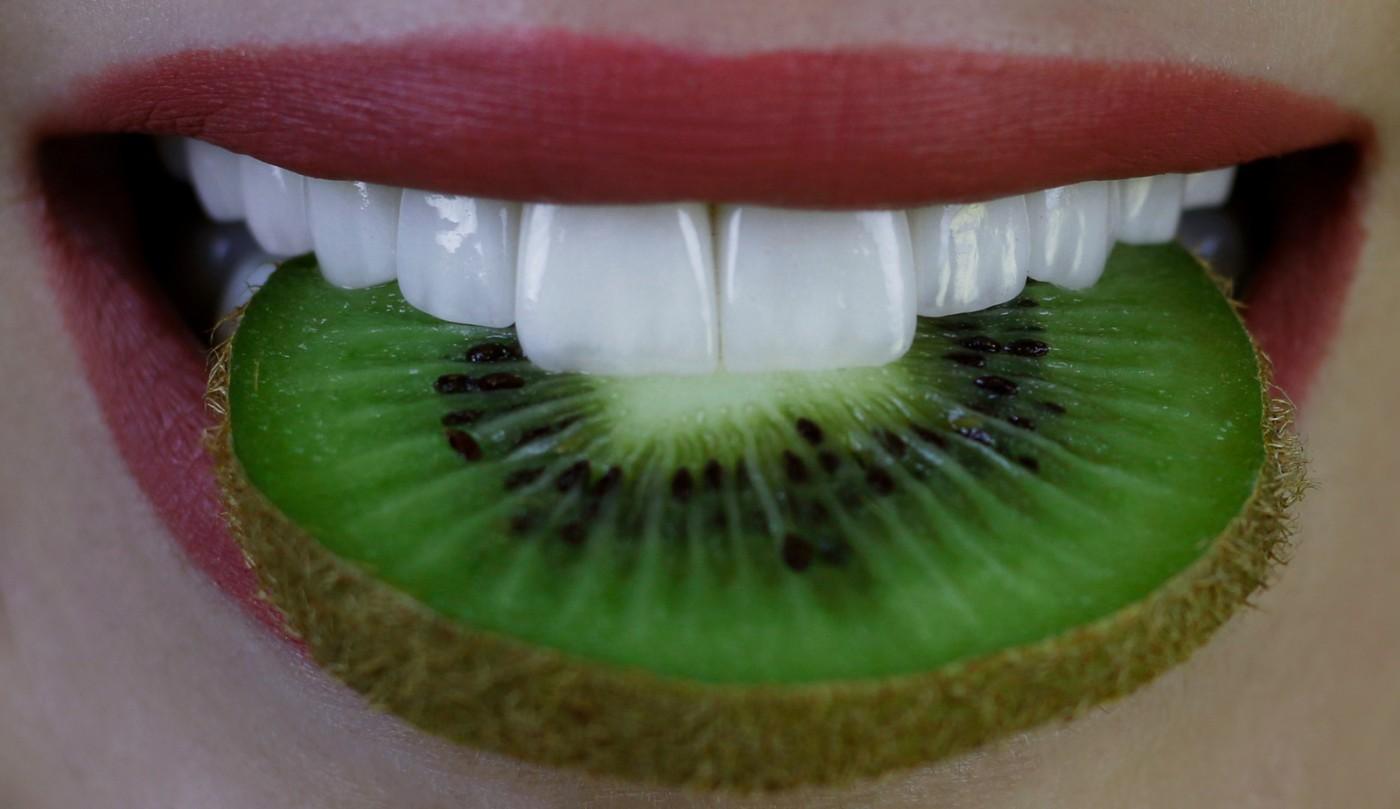 Fatete dentare Lyrdent Sectorul 6, Bucuresti