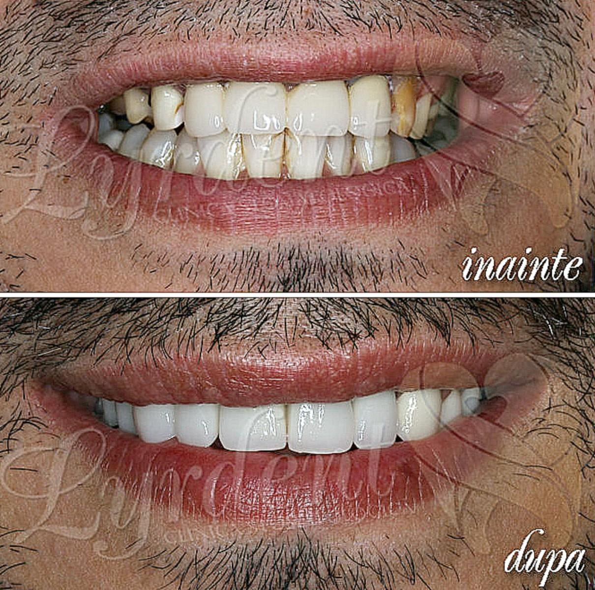 Marius - Reabilitare orala totala Lyrdent