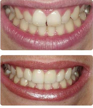 Clinica Lyrdent- fațete dentare