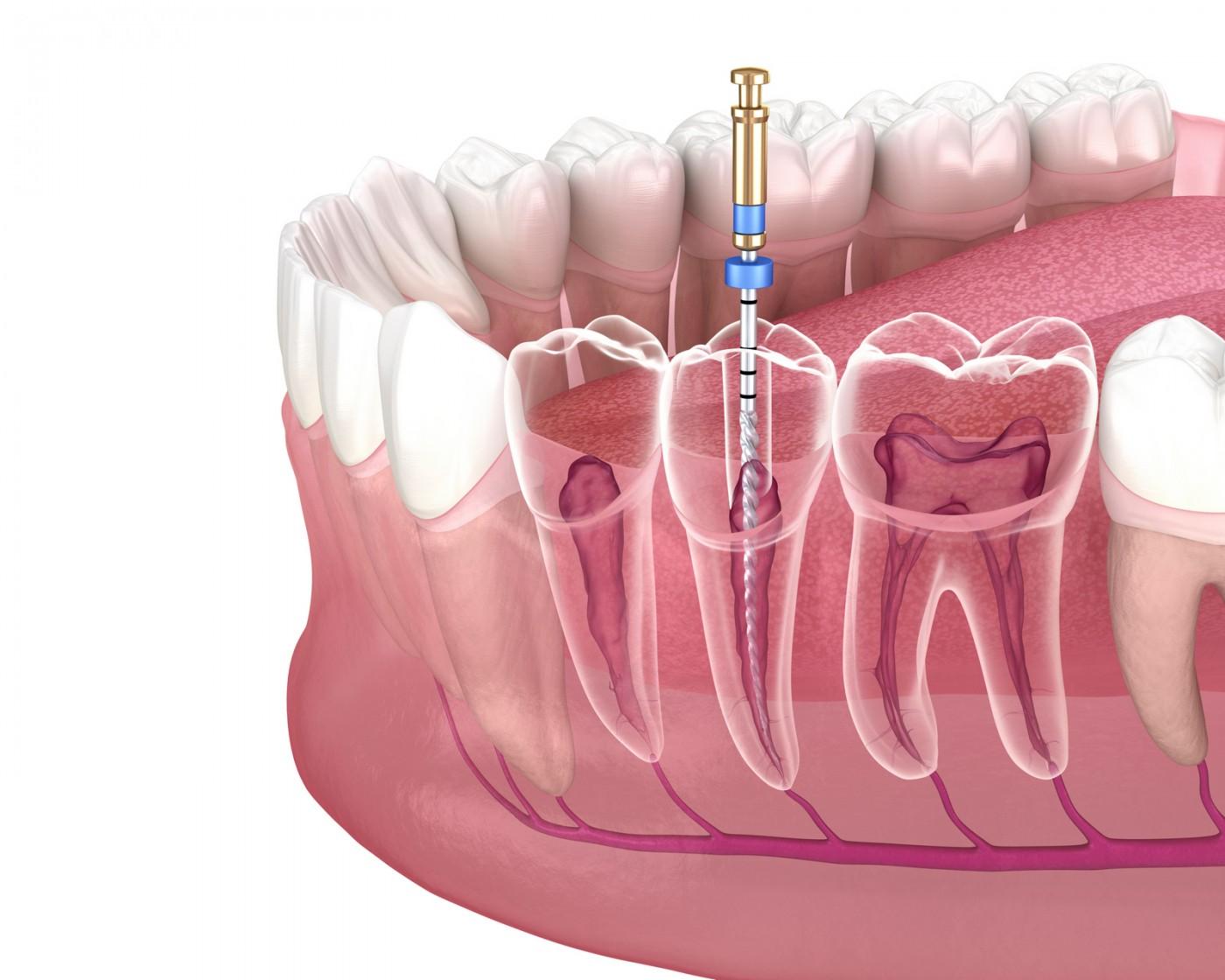 Endodontie de top Lyrdent Sectorul 6