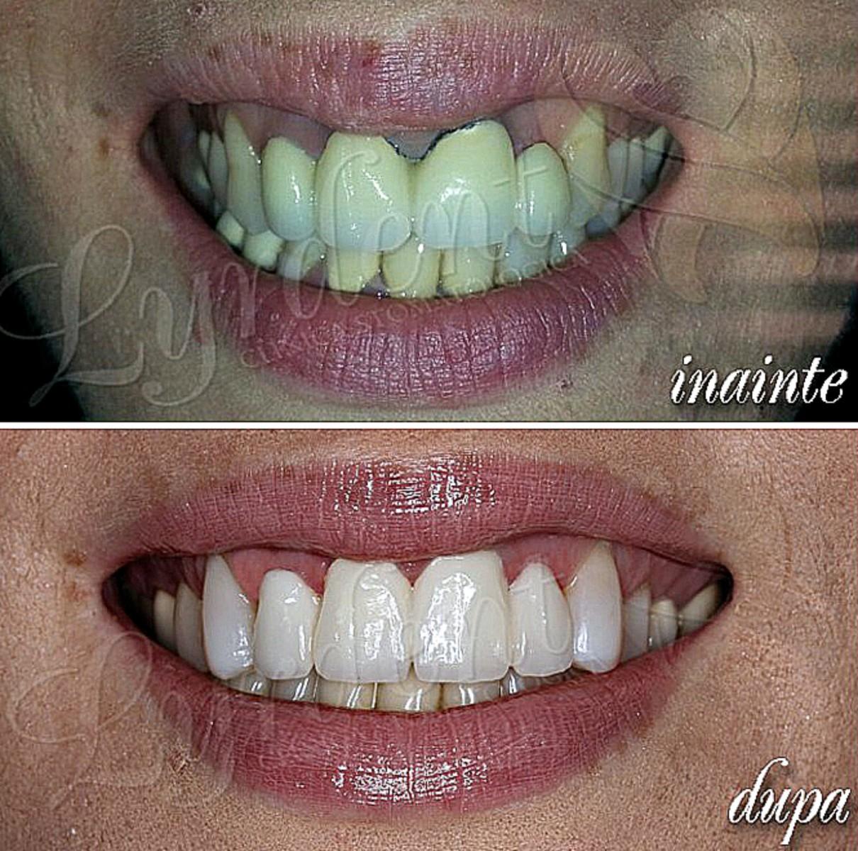 Caz clinic Lyrdent - reabilitare orală totală