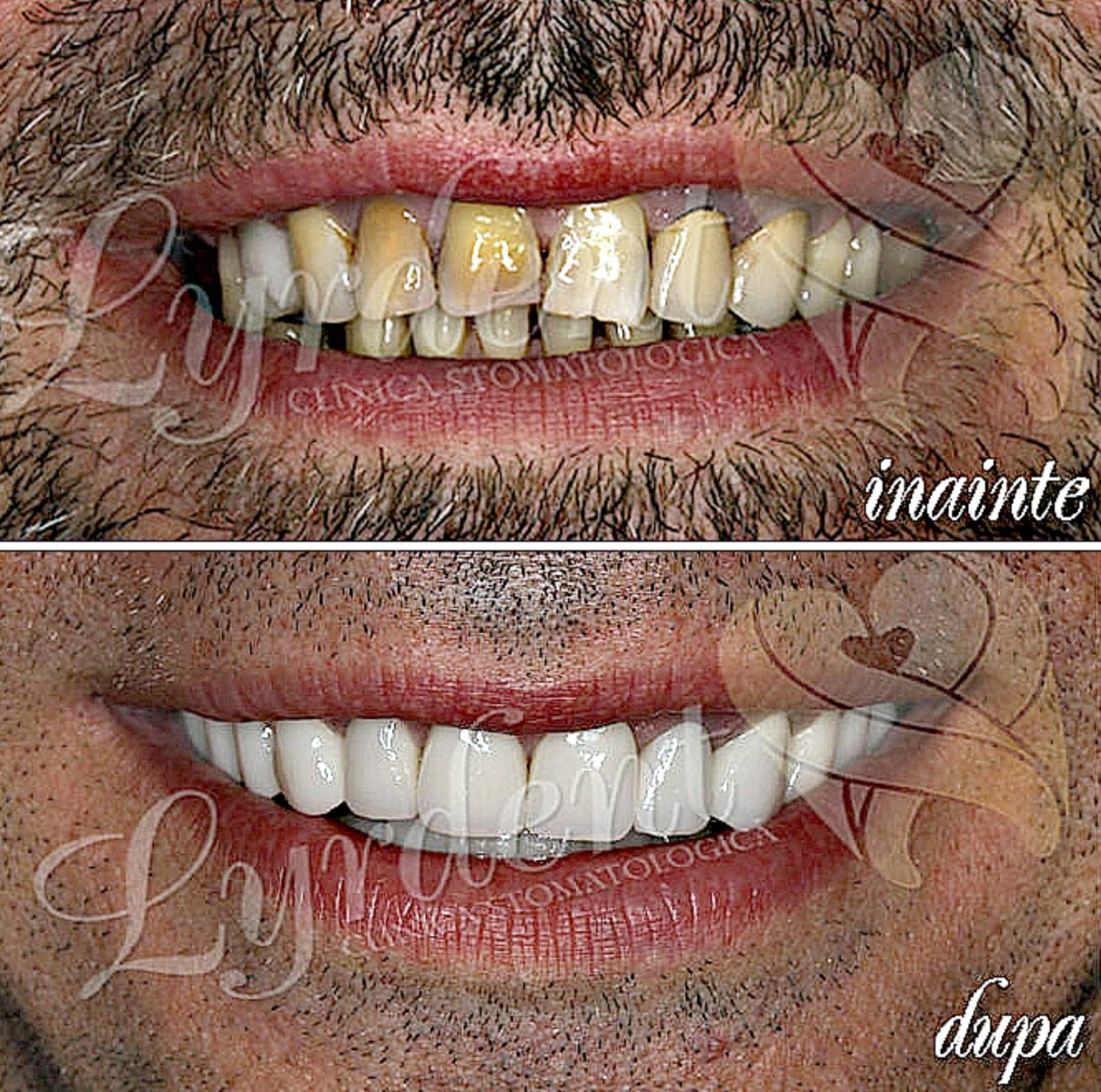 Caz clinic Lyrdent- Reabilitare orală totală Sorin
