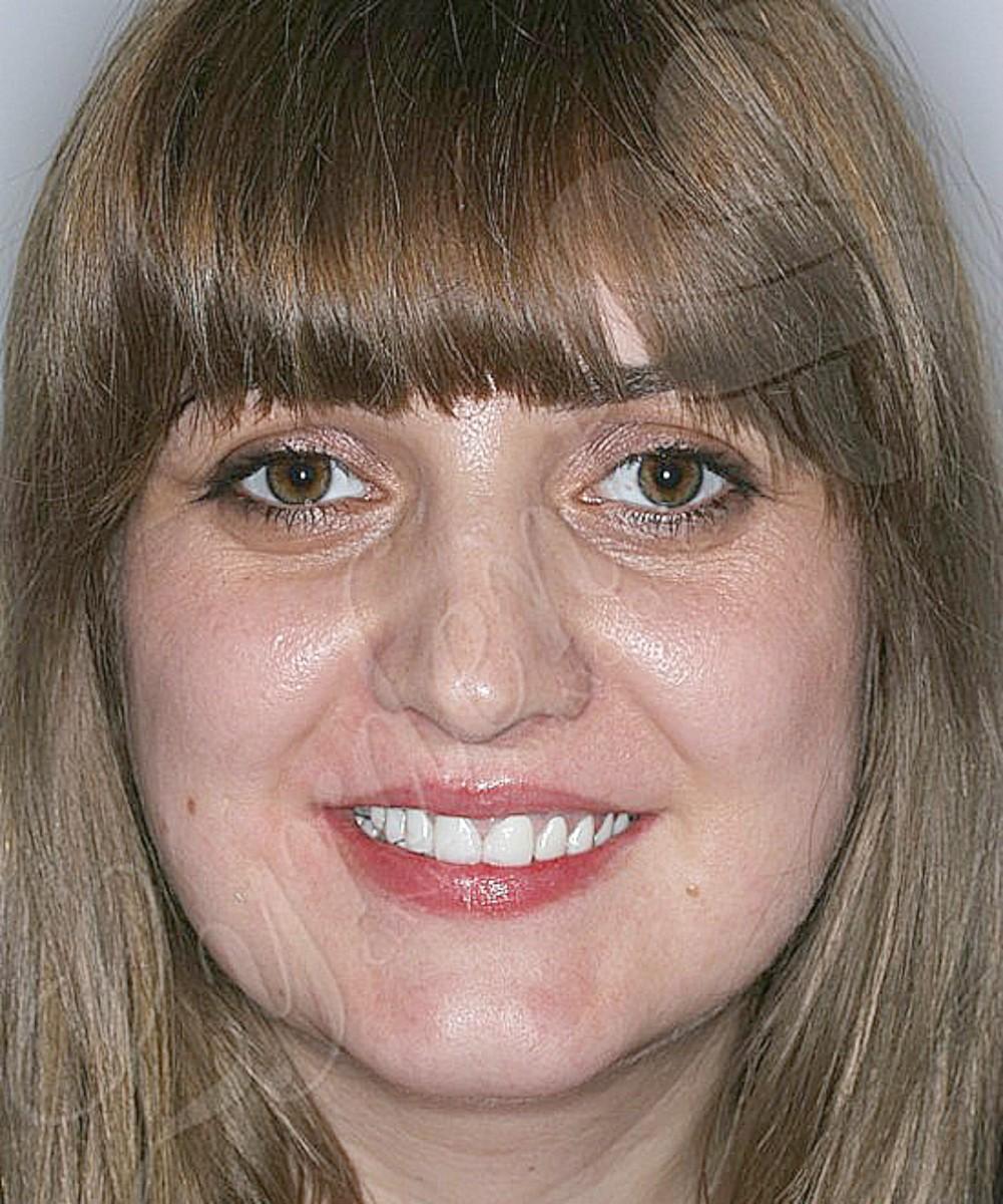 Caz clinic Lyrdent - reabilitare orală complexă Ioana S.