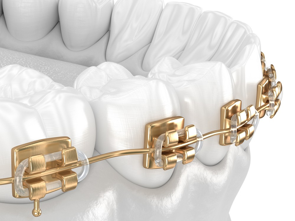 Ortodonție LYRDENT ORHIDEEA
