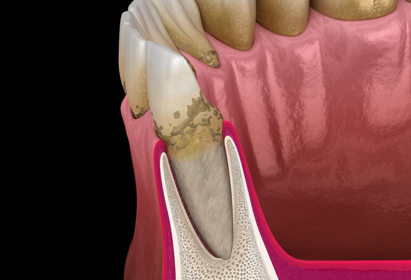 Tratamentul parodontozei in clinica Lyrdent