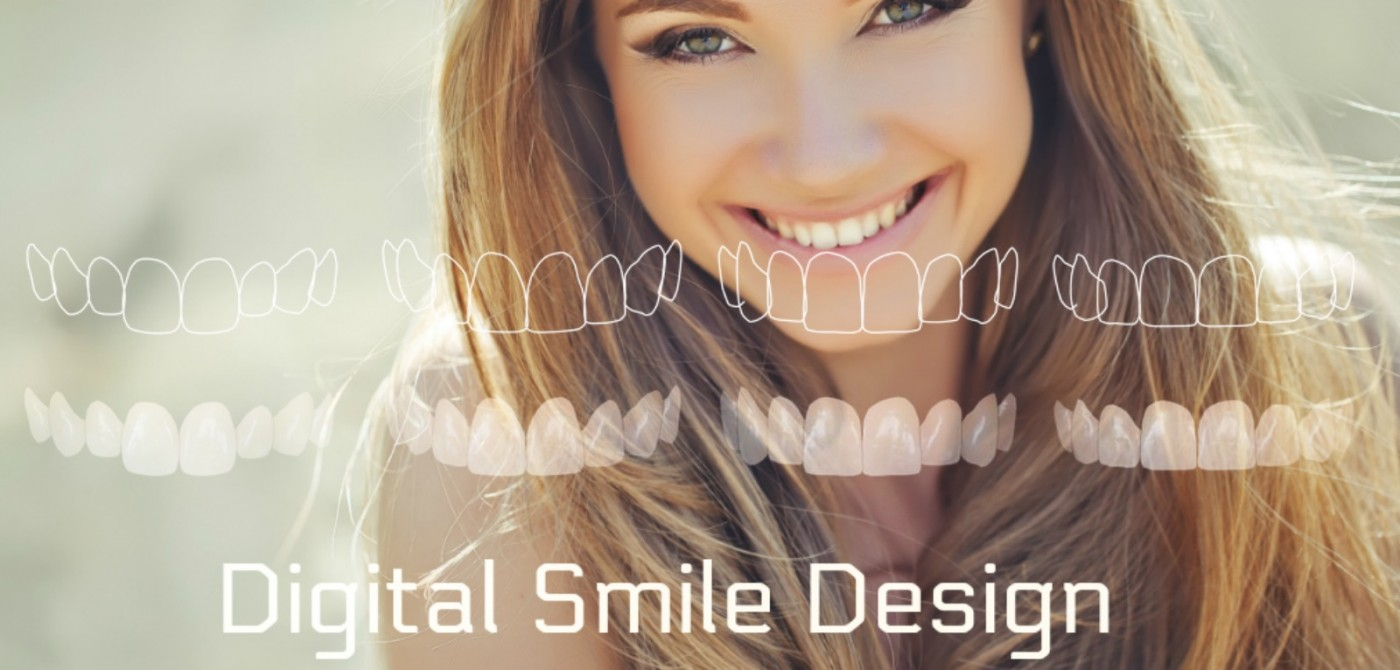 Digital Smile Design Lyrdent Orhideea